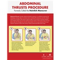 Abdominal Thrusts Procedure